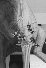 Orthopedic Surgery diagram
